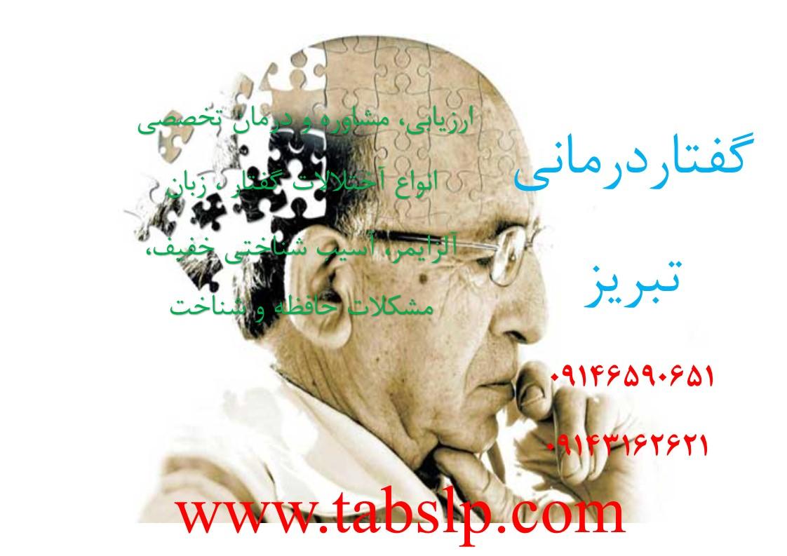 روش های درمان آلزایمر
