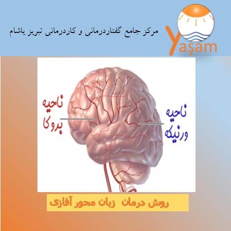 درمان زبان محور آفازی