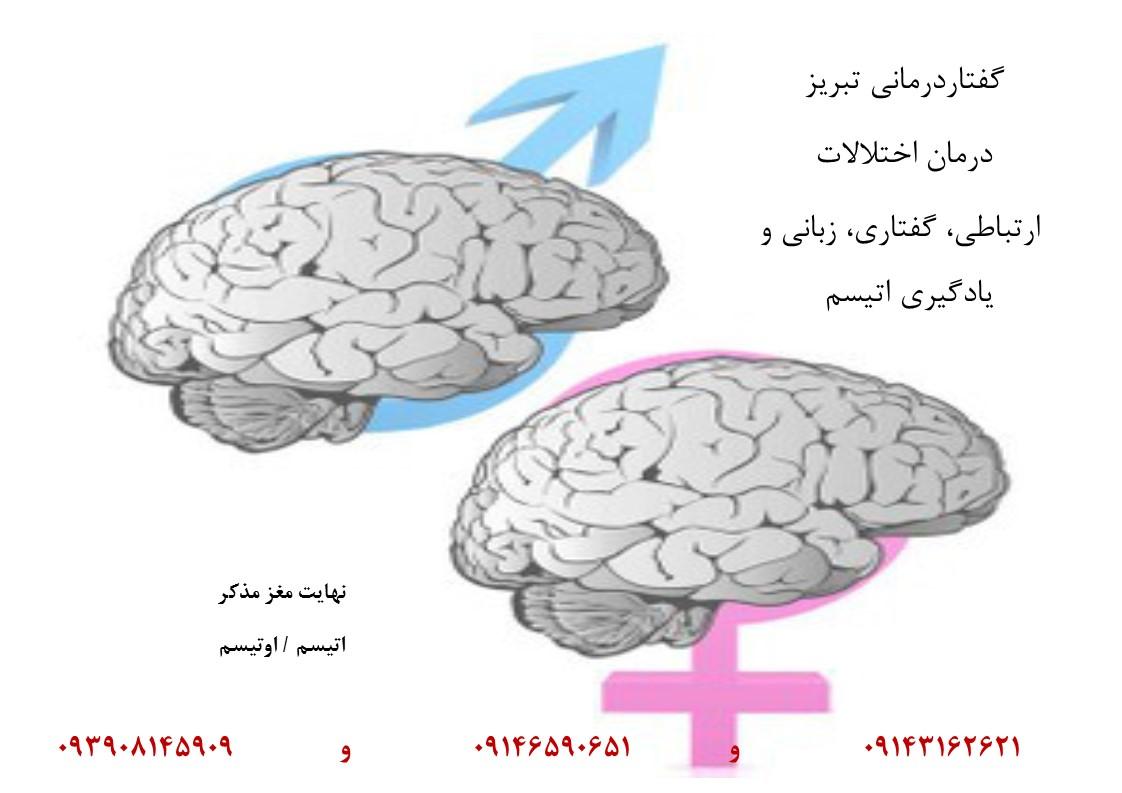 مغز مردانه و زنانه